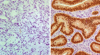 Image: Patients whose stage II colon cancer tested negative for CDX2 expression (left) had a worse prognosis than those whose cancer tested positive (right) (Photo courtesy of Columbia University Medical Center).