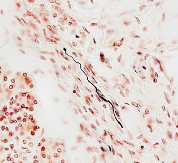 Image: Immunostaining: the black fiber is positive for alpha-synuclein pathology inside a nerve fiber in the submandibular gland (Photo courtesy of Journal of Parkinson\'s Disease).