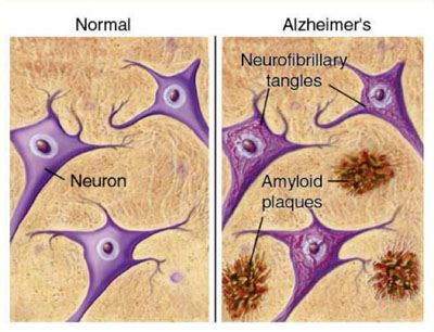 Image: A diagram of the formation of amyloid plaques in the brain of an Alzheimer brain compared with a normal brain (Photo courtesy of Junji Takano).