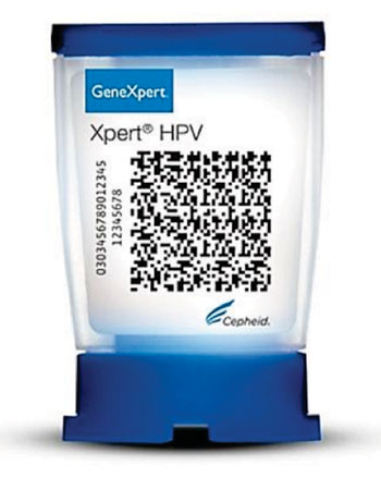 Image: The Xpert HPV assay is a qualitative real-time polymerase chain reaction (qRT-PCR) test for automated and rapid detection of Human Papillomaviruses (Photo courtesy of Cepheid).