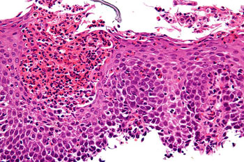 Image: A micrograph of eosinophilic esophagitis (EoE), H&E stain. Characteristic features are present: Abundant eosinophils – criteria vary; one common definition is: > 20 eosinophils/0.24 mm2; Papillae are elongated; papillae reach into the top 1/3 of the epithelial layer; Basal cell hyperplasia; > 3 cells thick or >15% of epithelial thickness; Spongiosis (Photo courtesy of Michael Bonert / Wikimedia).